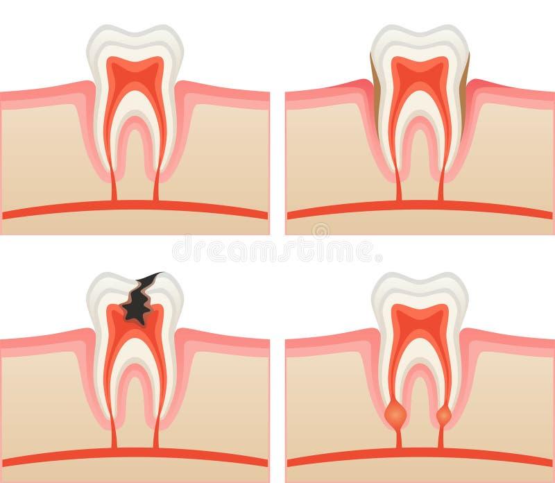 tandvärk stock illustrationer