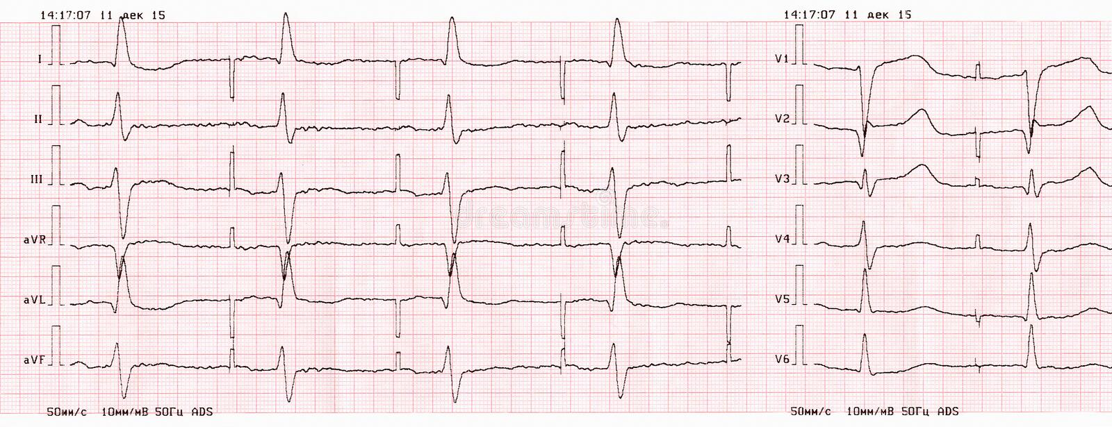 Tape ECG with pacemaker rhythm (atrial pacing). Tape ECG with artificial pacemaker rhythm (atrial pacing royalty free stock photo