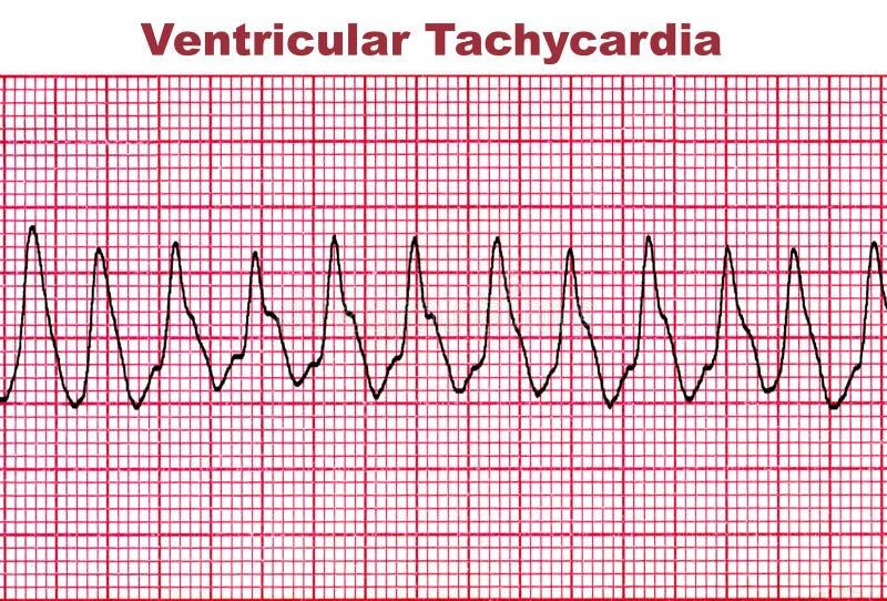 Taquicardia ventricular - arritmia mortal del corazón stock de ilustración
