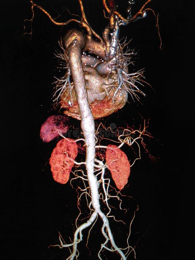 Tar beräknad tomography angiographphy3D för CTA fotoet från filmröntgenstråle av den hela aortan, AP anteroposterior VI arkivbilder