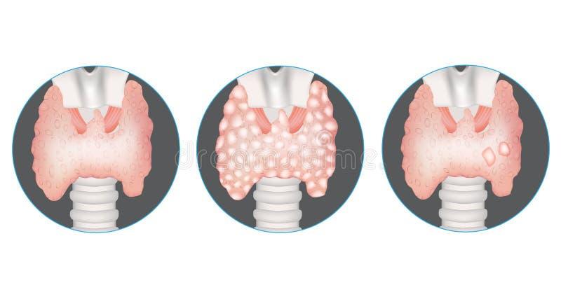 Tarczycowe gruczołowe choroby ilustracja wektor