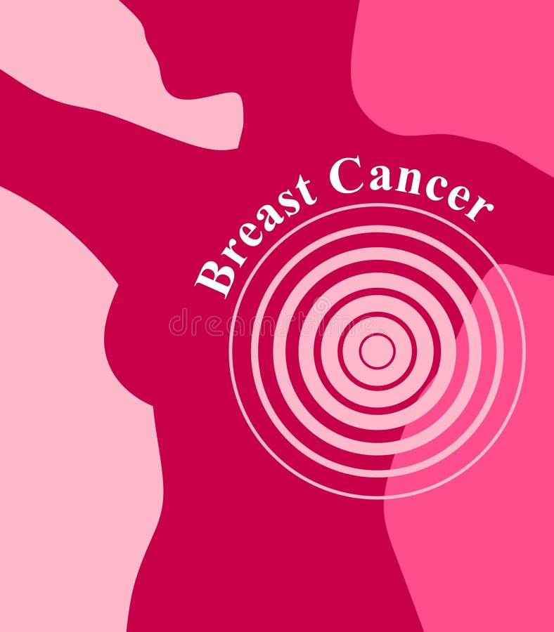 Free Targeting Breast Cancer Female Body Stock Photography - 4165172