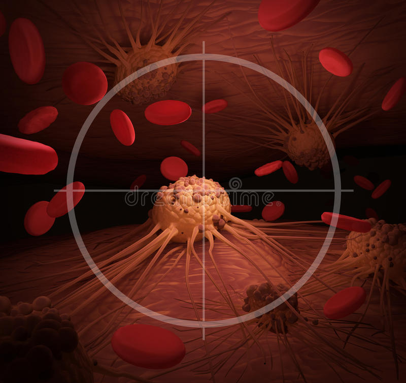 Targeting Cancer. An illustration depicting Cancer Cells in the crosshairs, related to cancer treatment