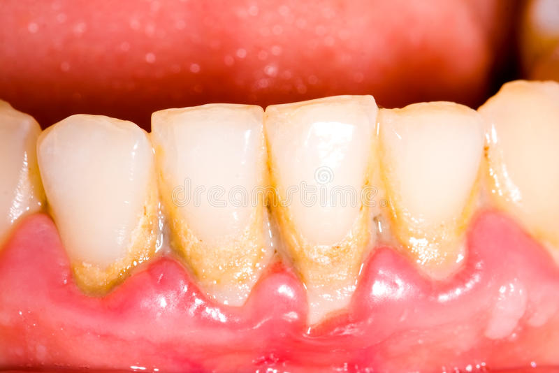 Tartre et plaque dentaires photos libres de droits