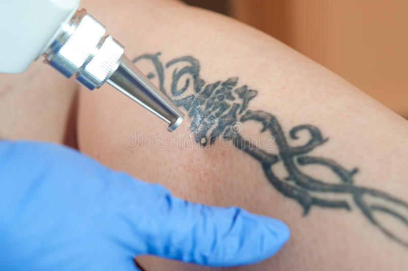 Tattoo removal stock photo