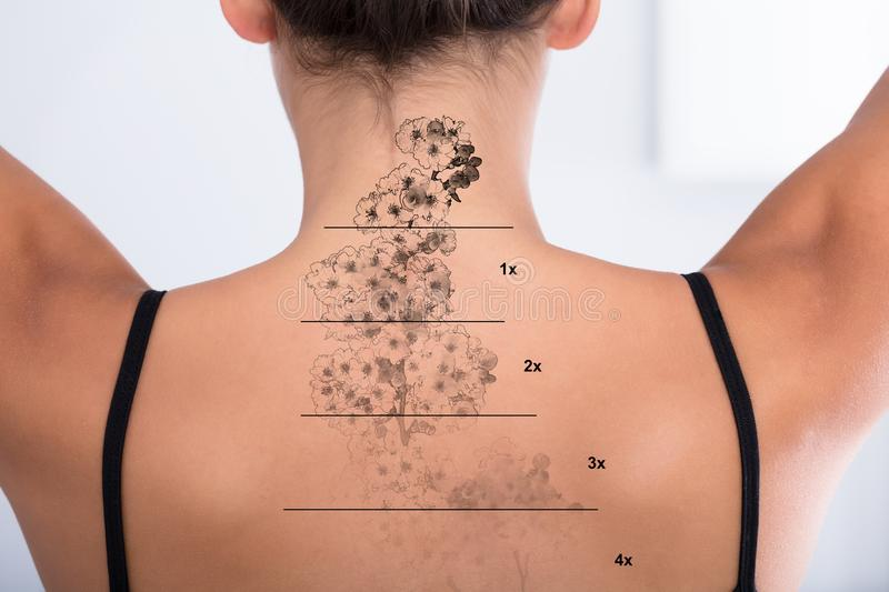 Tattoo Removal On Woman`s Back. Laser Tattoo Removal On Woman`s Back Against White Background royalty free stock images
