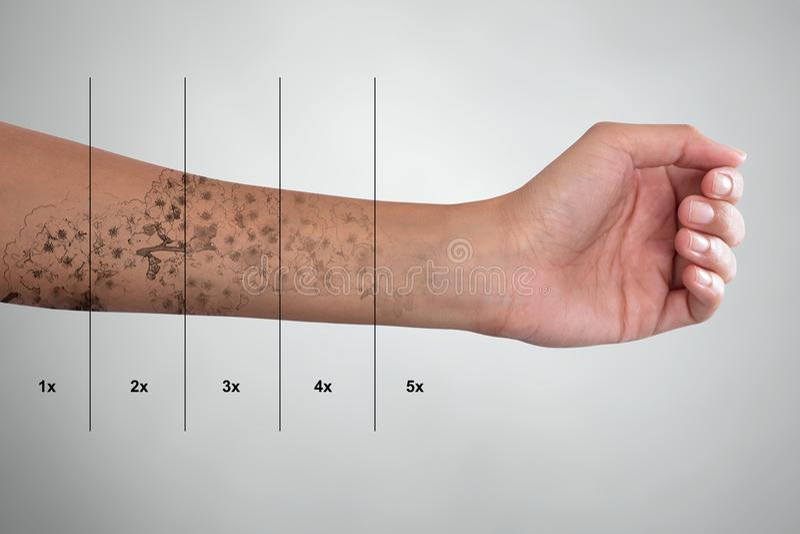 Tatueringborttagning på handen för kvinna` s arkivfoton