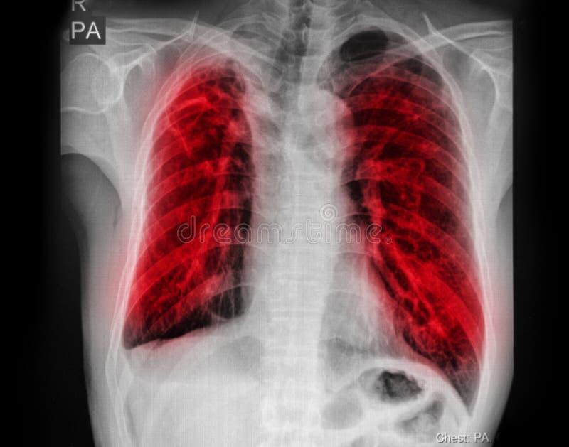 TB da tuberculose pulmonaa: Infiltração alveolar da mostra do raio X de caixa em ambos pulmão foto de stock royalty free