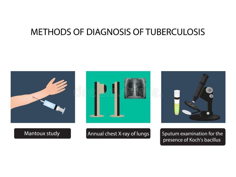 TB kenmerkende methodes Röntgenstralen van licht Het Onderzoek van de Mantouxtest van sputum De Dag van de wereldtuberculose Info stock illustratie