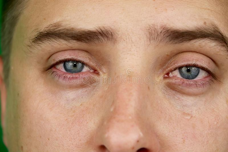 Tears in eyes of crying adult man. Green background. Chromakey royalty free stock photography