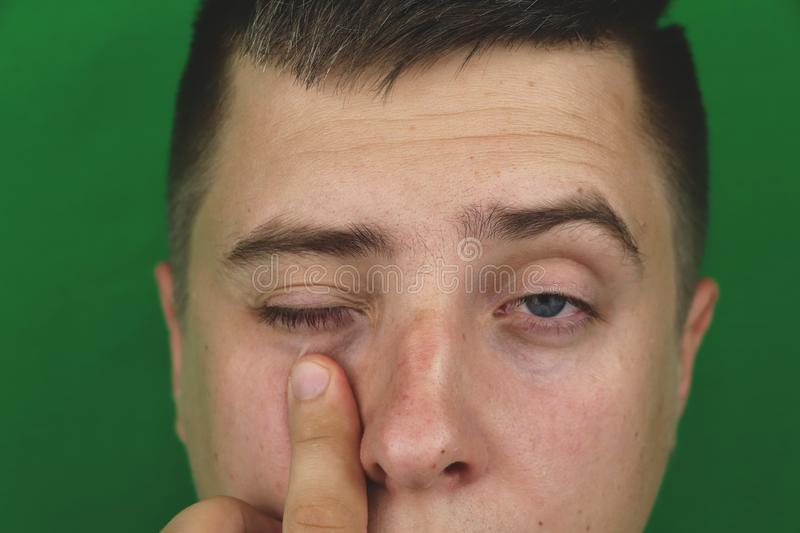 Tears in eyes of crying adult man. Green background. Chromakey stock photos