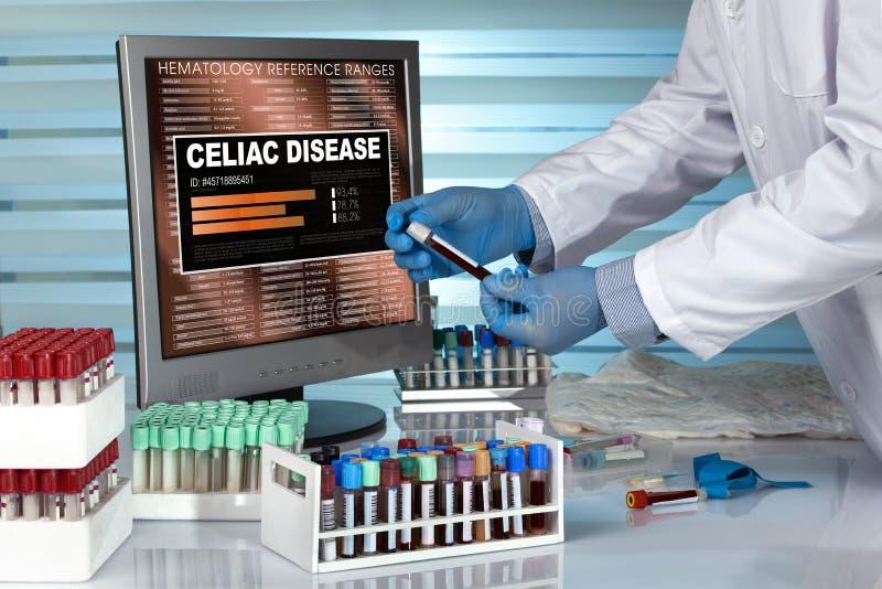 Technicien dans la prise de sang de examen de laboratoire avec la recherche de maladie coeliaque images libres de droits