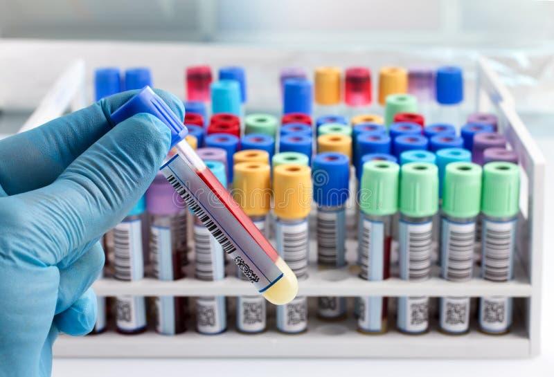 Technicien de laboratoire jugeant un essai de tube de sang marqué avec la barre photo stock