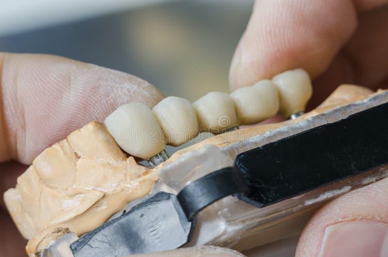 technicien dentaire plaçant le dentier partiel fixe photos libres de droits
