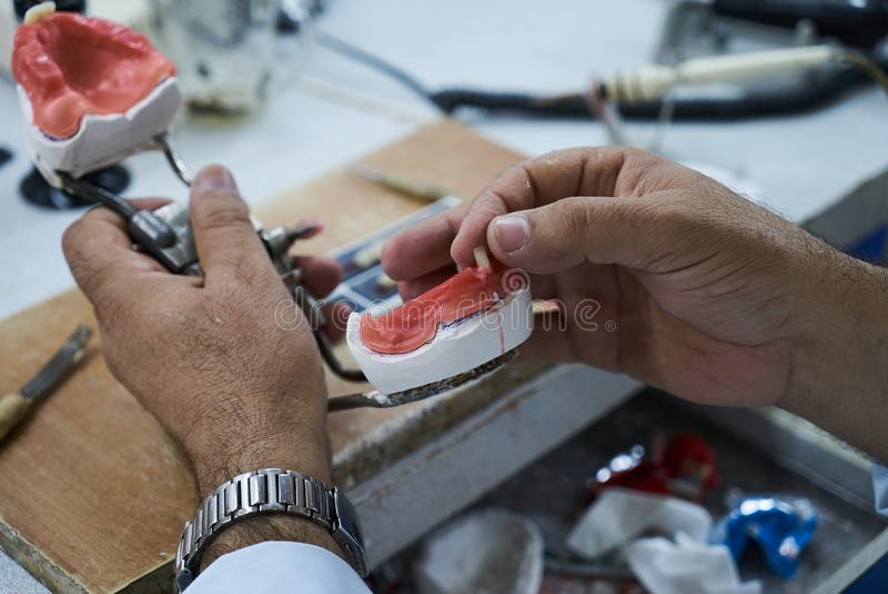 Technicien dentaire utilisant un couteau avec les implants dentaires en céramique photos stock