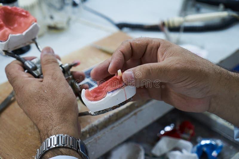 Technicien dentaire utilisant un couteau avec les implants dentaires en céramique images libres de droits
