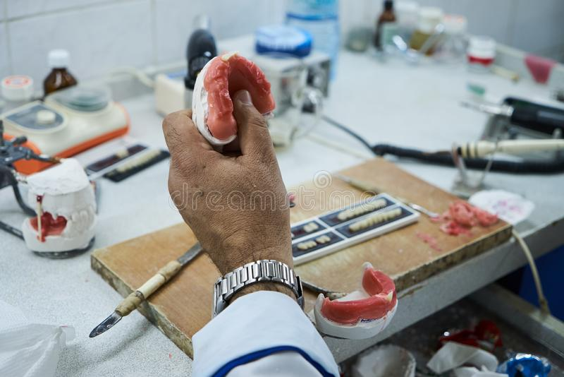 Technicien dentaire utilisant un couteau avec les implants dentaires en céramique photo stock