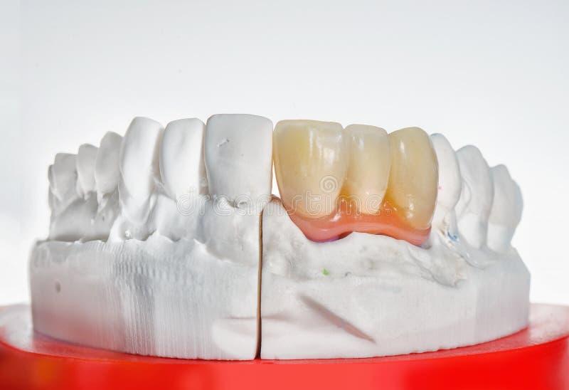 Technische Schüsse der Zahnprothese auf einem zahnmedizinischen prothetic labora lizenzfreies stockfoto