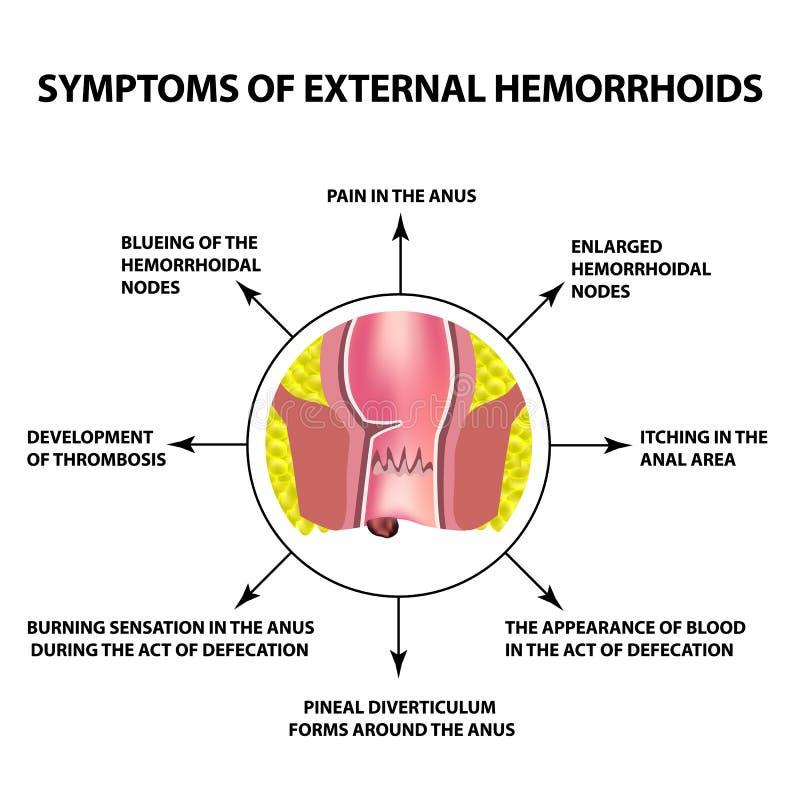 Tecken av yttre hemorrojder Den hemorrhoidal knutpunkten i ändtarmen, analöppning Infographics också vektor för coreldrawillustra royaltyfri illustrationer