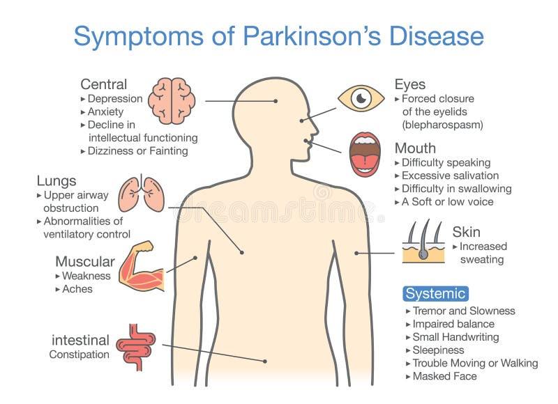 Tecken och tecken för sjukdom för Parkinson ` s stock illustrationer