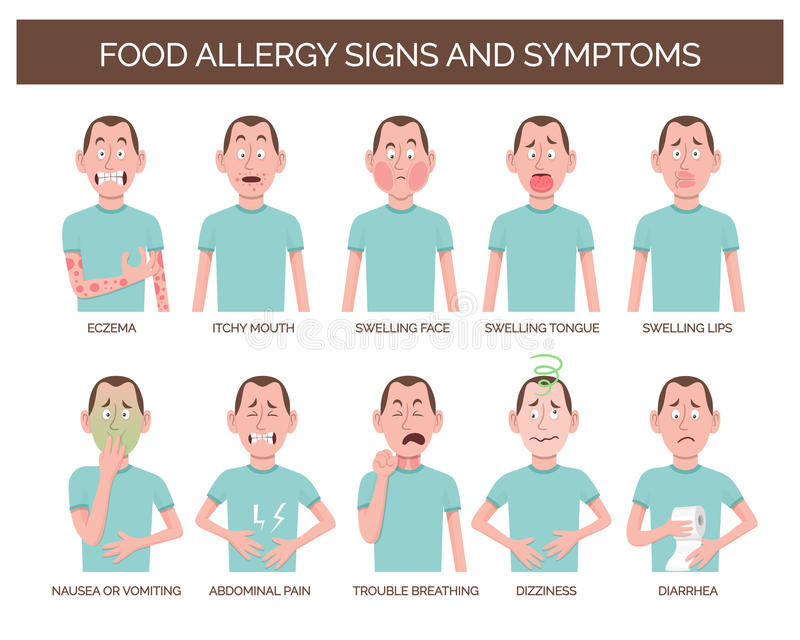 Tecken och tecken för matallergi royaltyfri illustrationer