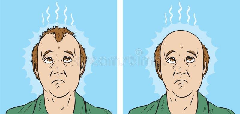 Tecknad film för hårförlust royaltyfri illustrationer
