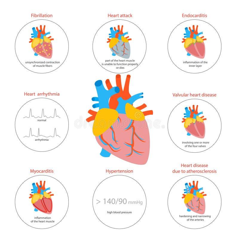 Tecknad filmhjärtsjukdomInfographic kort eller affisch vektor royaltyfri illustrationer