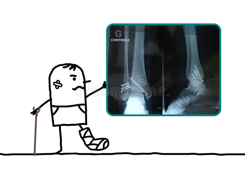 Tecknad filmmannen sårade hans fot som visar en röntgenstråle stock illustrationer