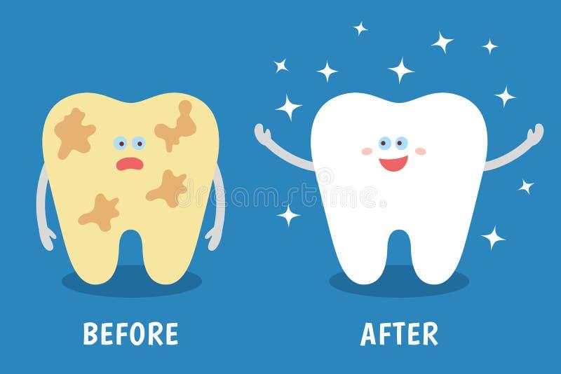 Tecknad filmtand före och efter rengöra eller göra vit eller tand- tillvägagångssätt royaltyfri illustrationer