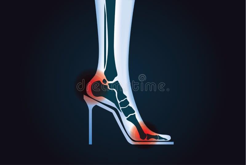 Tecknet smärtar på fötter benet stock illustrationer