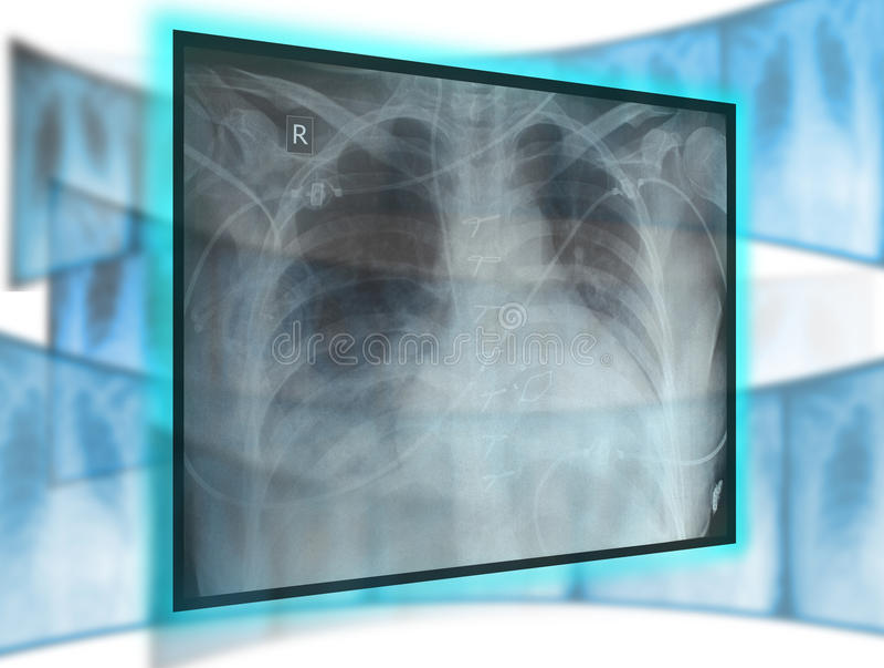Tecnologia dei raggi x immagini stock libere da diritti