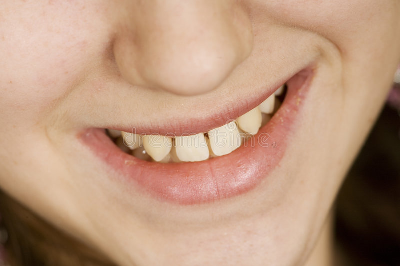Download Teen stock image. Image of corrective, growth, tooth, youth - 1418233