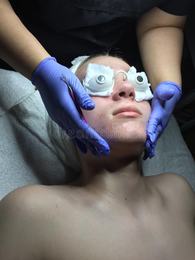Teen boy getting facial and extractions royalty free stock photos