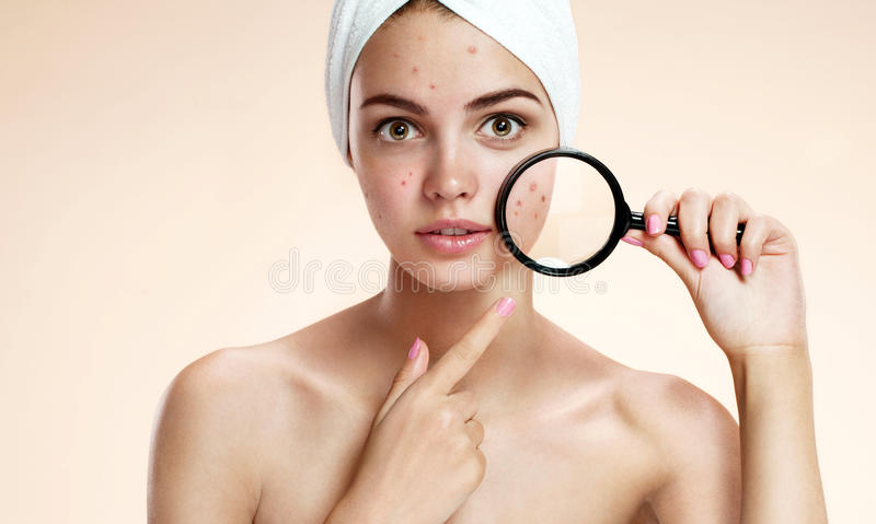 Teen girl with problem skin look at pimple with magnifying glass. Woman skin care concept stock photography