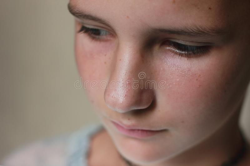 Teenage acne on the face of a teenager. royalty free stock image