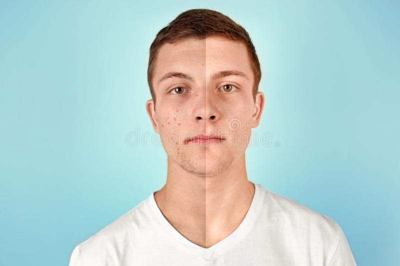 Teenager before and after acne treatment. On color background. Skin care concept royalty free stock images
