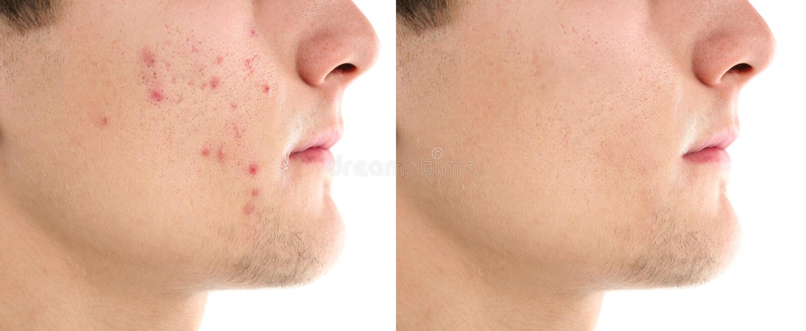 Teenager before and after acne treatment. On white background, closeup. Skin care concept royalty free stock photography