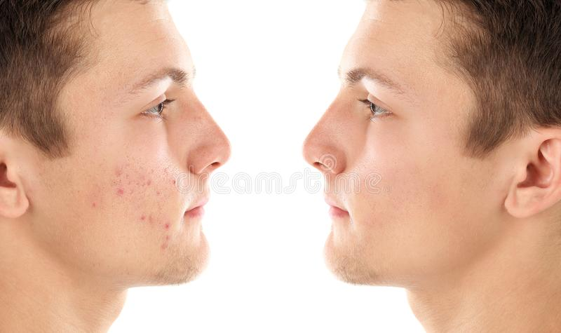Teenager before and after acne treatment. On white background. Skin care concept stock photography