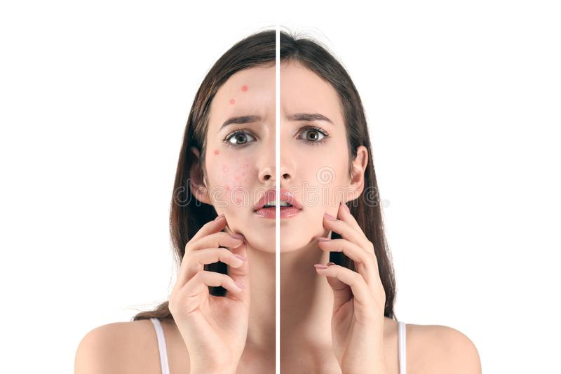 Teenager before and after acne treatment. On white background. Skin care concept royalty free stock photography