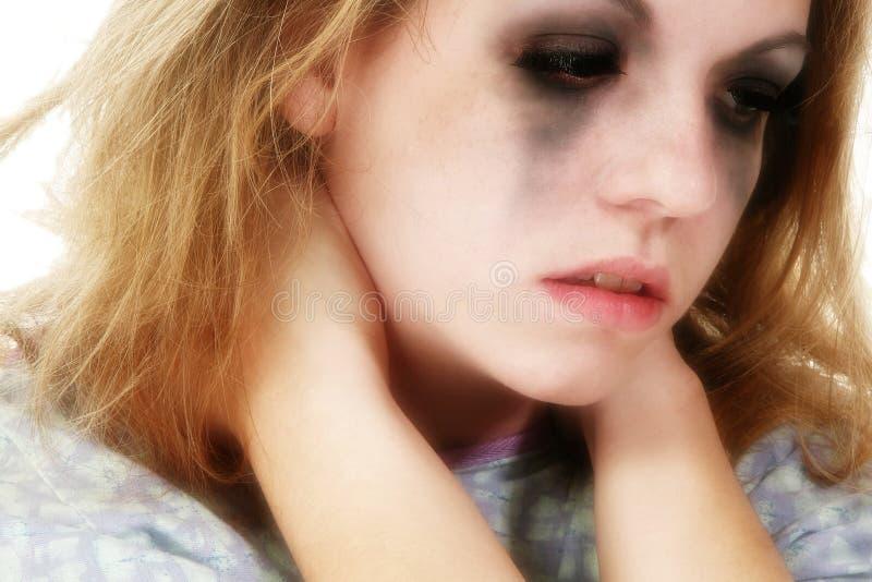 Teenager ammalato fotografia stock