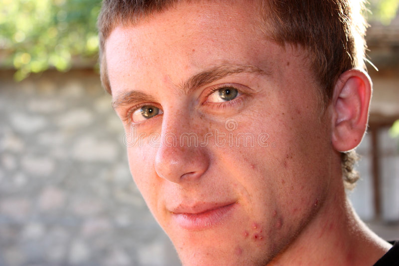 Teenager with pimples on his face stock photo