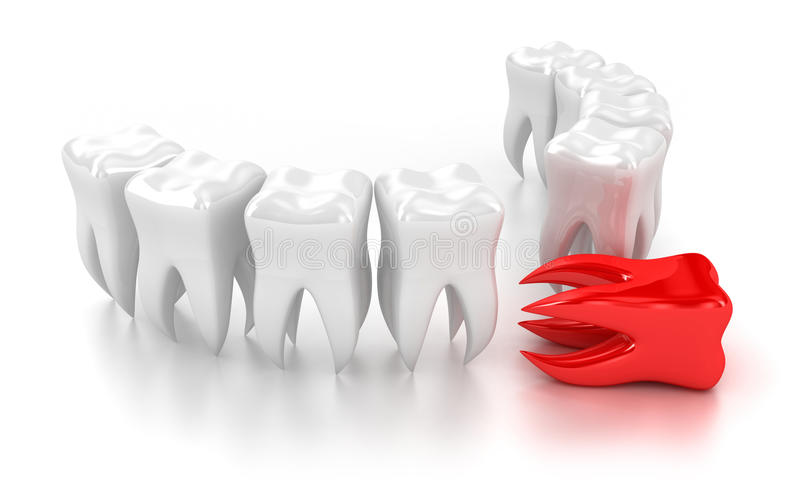 Download The teeth stock illustration. Illustration of patient - 24908708