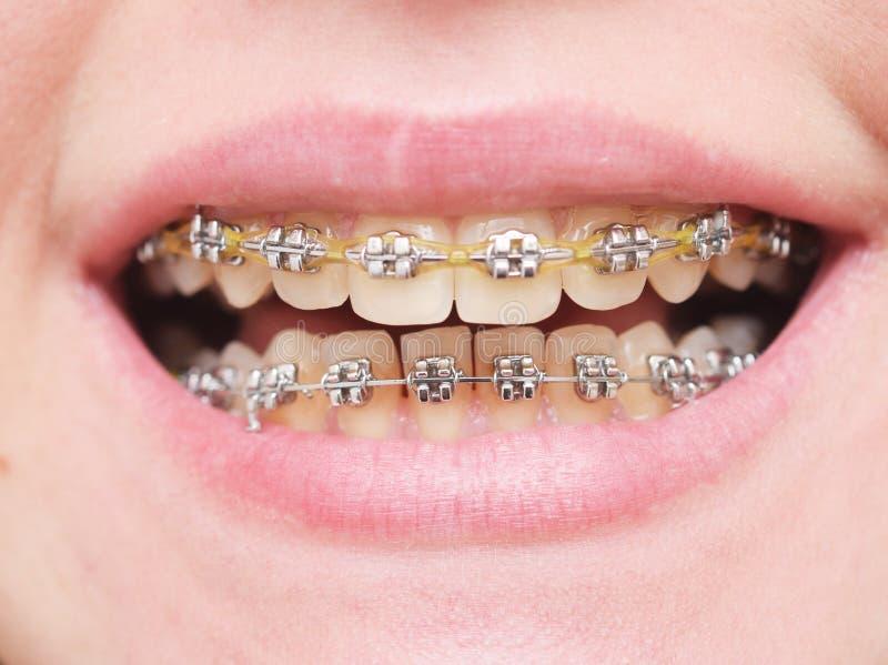 Teeth with braces stock image