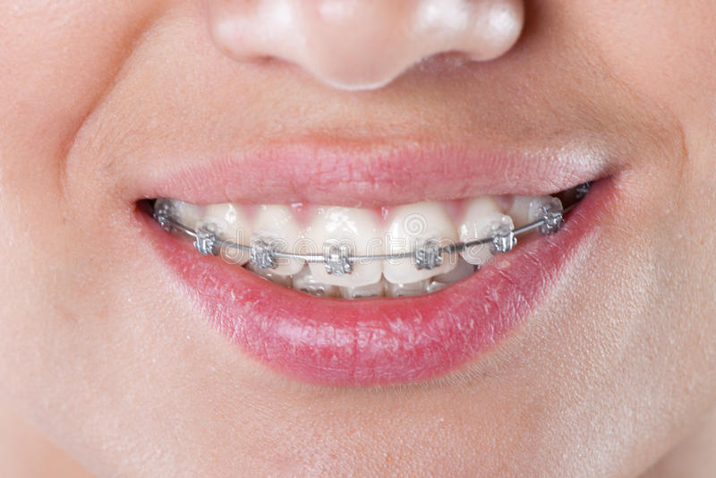 Download Teeth With Braces, Close Up Stock Photo - Image: 43512575