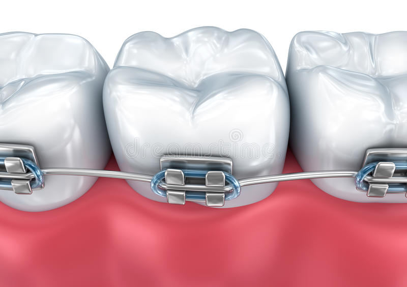 Teeth with braces isolated on white. Medically accurate illustration. Teeth with braces isolated on white. Medically accurate 3D illustration stock illustration