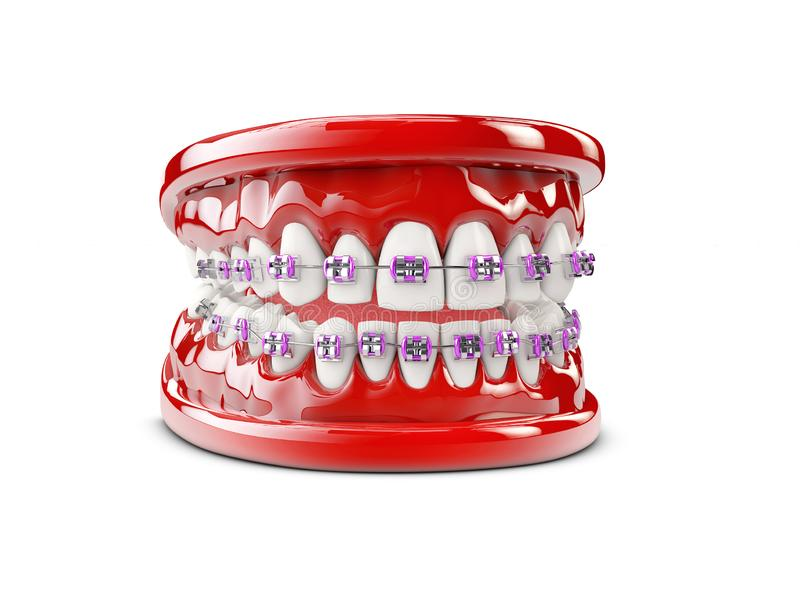 Teeth with brackets, Dental care concept 3d illustration royalty free stock photography