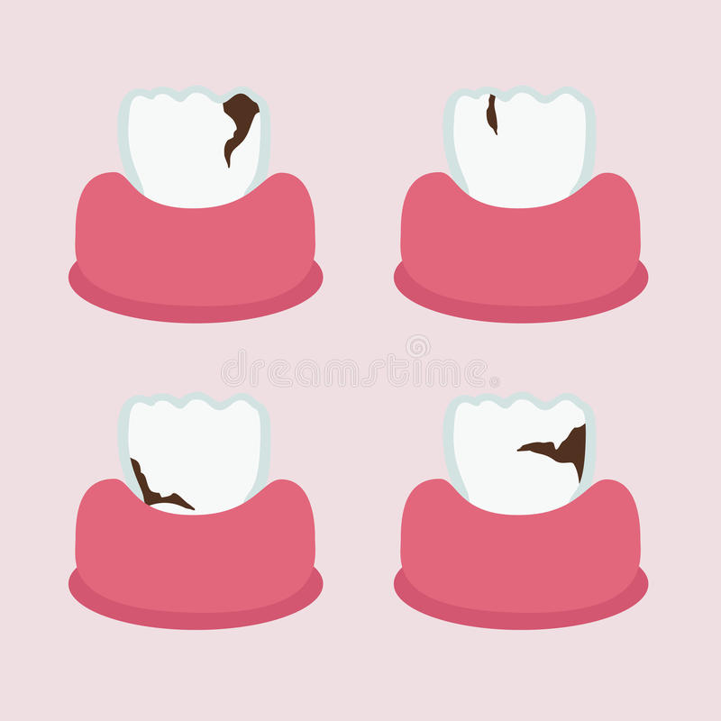 Teeth with cavities. Set of teeth with cavities - illustration royalty free illustration