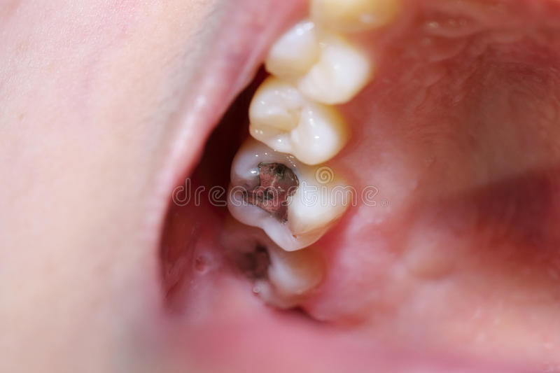 Teeth cavity with the treatment. Care stock photography