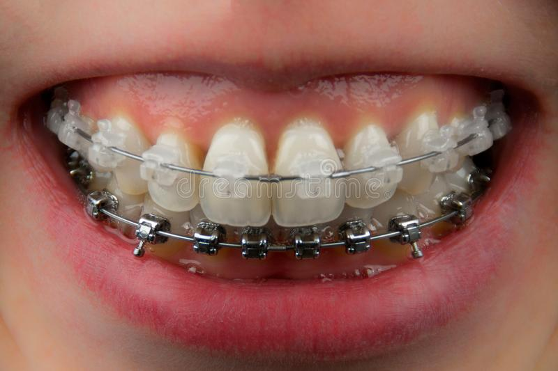 Teeth with ceramic and metal braces closeup royalty free stock image