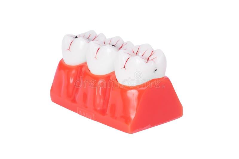 Teeth Dental Implantaat royalty-vrije stock afbeelding